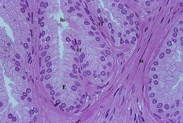 istologia prostatica delle ghiandole tubuloalveolari